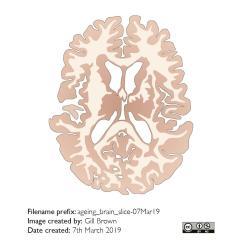 ageing_brain_gallery_image5-25Jul19