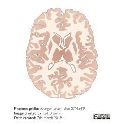 ageing_brain_gallery_image6-25Jul19